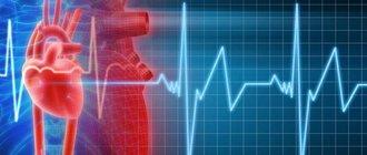Как диагностировать и вылечить мерцательную аритмию?