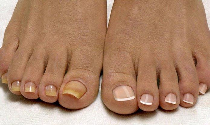 Симптомы грибка ногтей