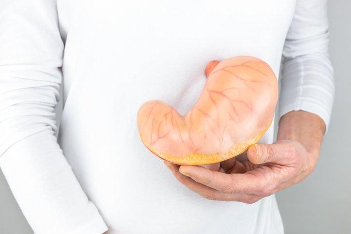 Причины появления язвы желудка