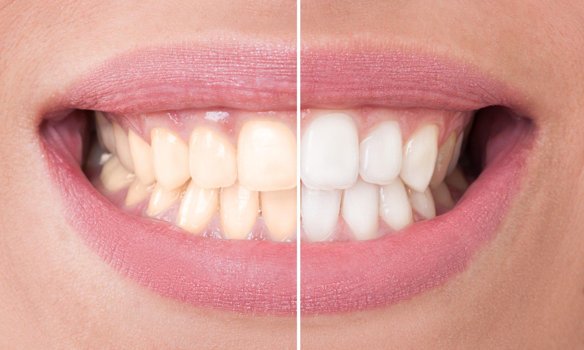 Удаление зубного камня дома — народные и профессиональные средства