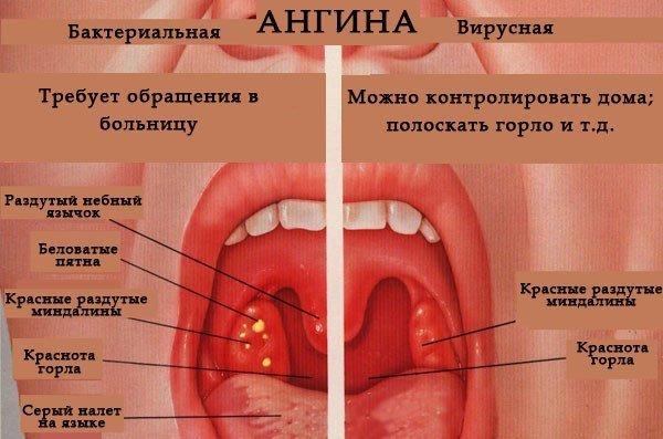 Что делать при боли в ухе у взрослых