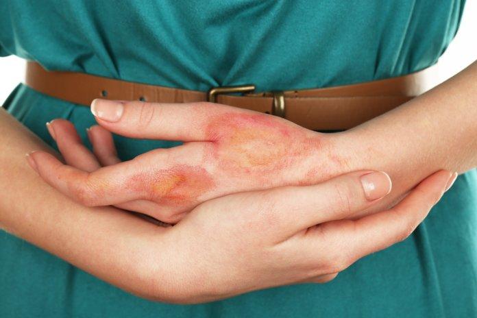 Лечение ожогов белокочанной капустой