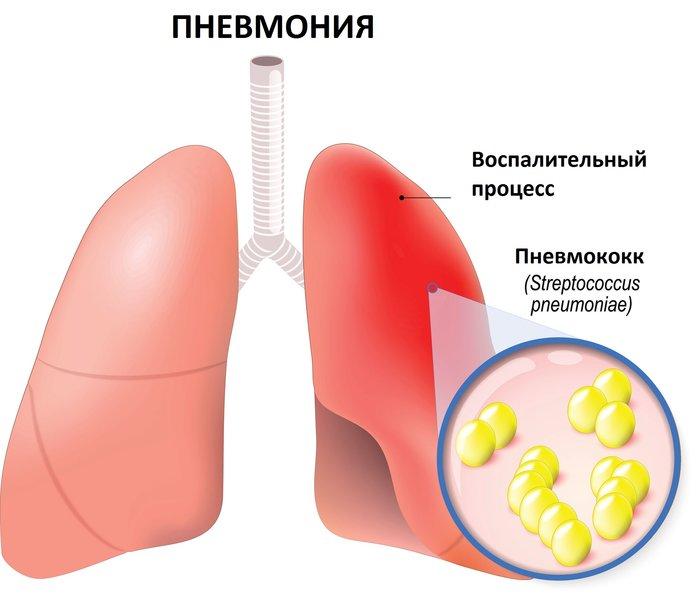 Вид пораженного пневмонией легкого