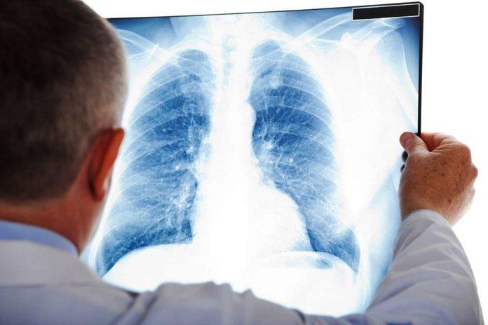 Признаки и лечение пневмонии у взрослых