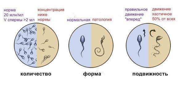 Секреторное бесплодие у мужчин