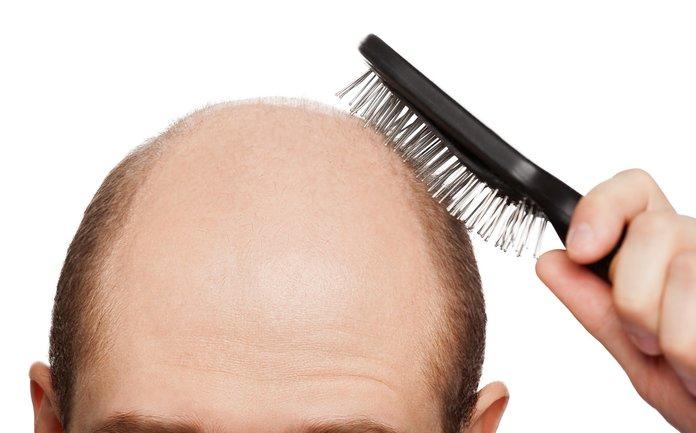 Выпадение волос причины и лечение у женщин народными средствами