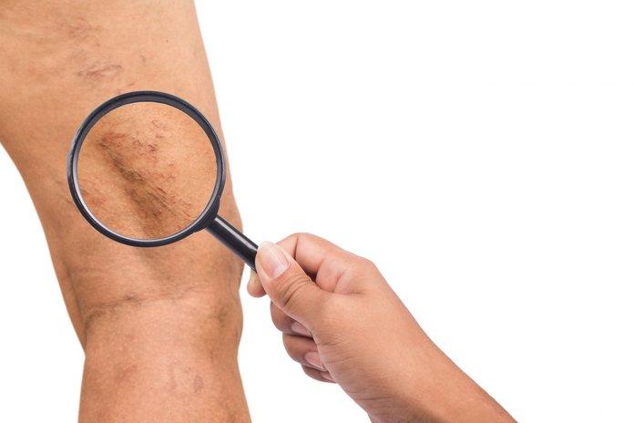 Симптомы варикозного заболевания вен