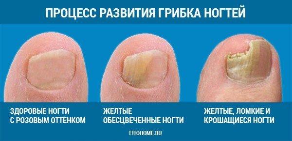 Как вылечить грибок на пальце ноги и ногтей фото