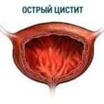 Цистит — симптомы и лечение в домашних условиях
