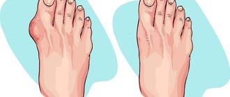 Как избавиться от косточки на ноге?
