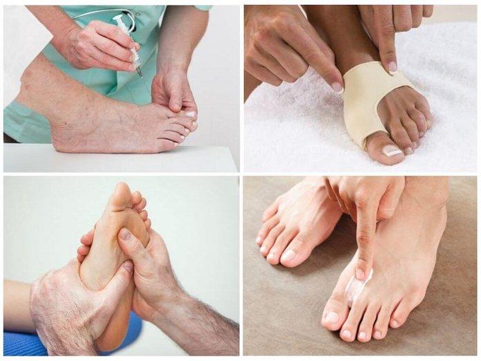 Можно ли избавиться от косточки на ноге народными средствами - Твой стиль жизни