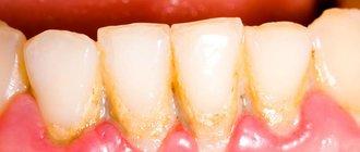 Как избавиться от зубного камня в домашних условиях?