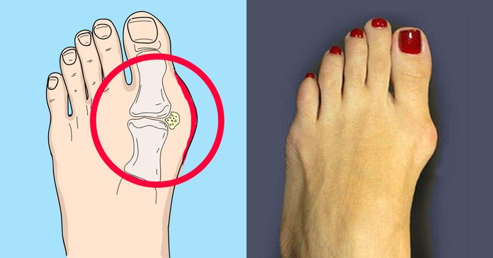 Коррекция косточки на ноге- вальгусная деформация первого пальца стопы