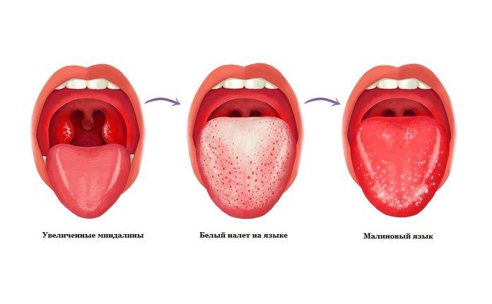 Цвет языка при скарлатине