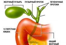 Лечение холецистита — эффективные народные средства