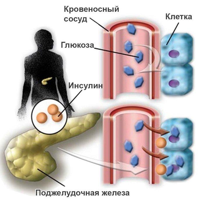 Как лечить народными средствами поджелудочную железу