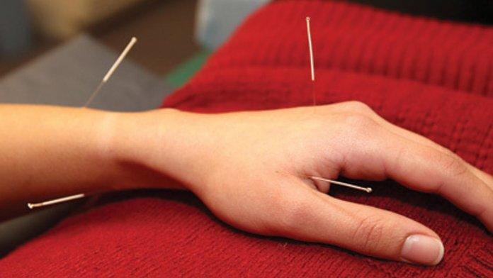 Иглоукалывание при лечении межреберной невралгии