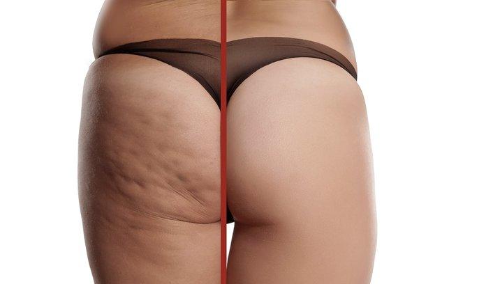 Дистрофические изменения жирового подкожного слоя