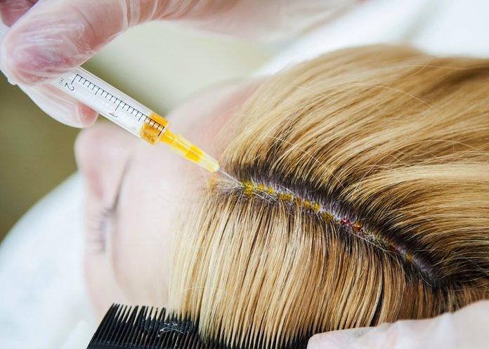 Биоревитализация - одна из наиболее эффективных методик по ускорению роста волос