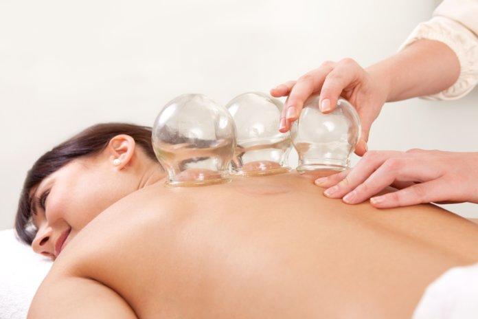 Баночный массаж при лечении ишиаса