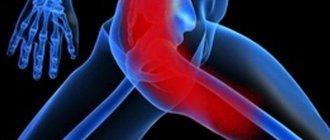 Лечение воспаления седалищного нерва