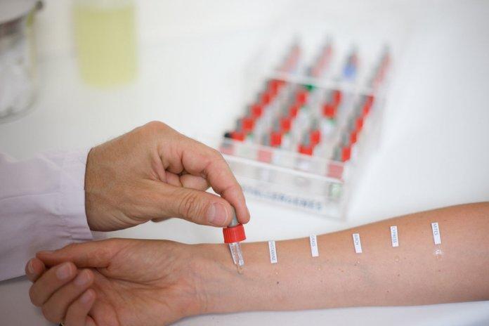 Аллергические пробы при кожном заболевании