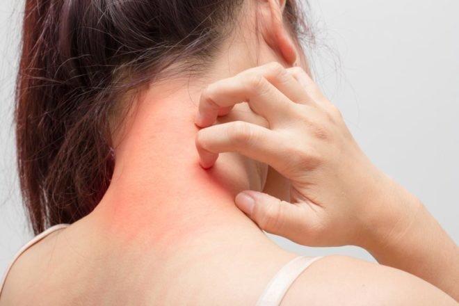 атопический дерматит у взрослых симптомы