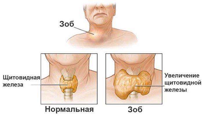 Как выглядит зоб щитовидной железы