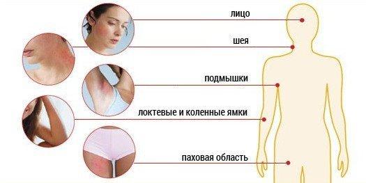 Дерматит фото симптомы и лечение у взрослых