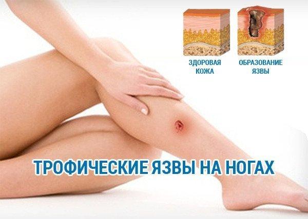 Трофические язвы на ногах лечение в домашних условиях фото пошагово