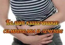 Язвенный колит кишечника — симптомы, лечение
