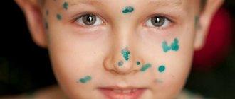 Лечение ветрянки у детей