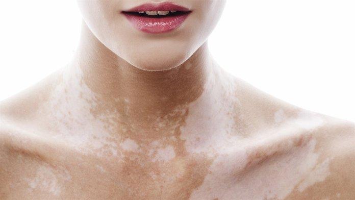 Симптомы заболеваний при обесцвечивании кожи