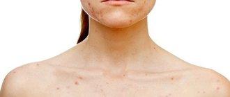 Красные пятна по всему телу – почему чешутся красные пятна?