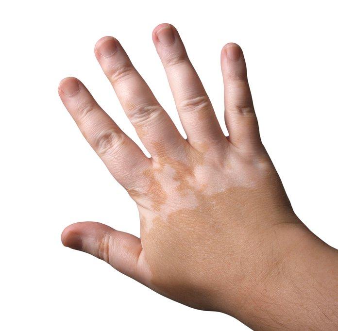 Как избавиться от белых пятен на коже?