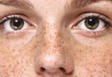 Веснушки на лице — как с лица убрать веснушки?