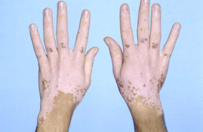 Лечение пигментных болезней
