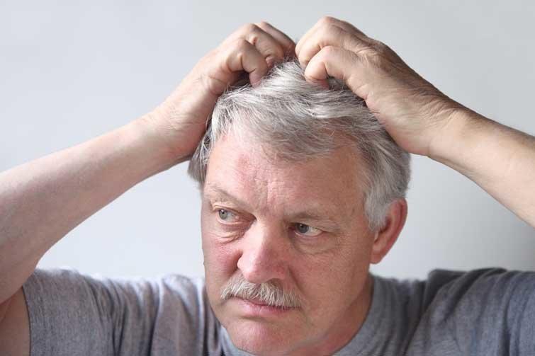 Бородавка на голове - под волосами, фото, что делать, удалить, как лечить, у ребенка