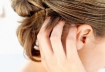 Псориаз волосистой части головы фото — отзывы о лечении псориаза
