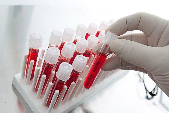 Анализ крови на псориаз