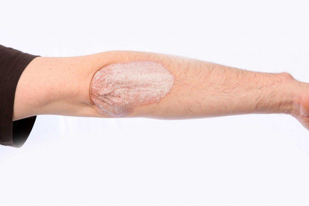 Лучшее средство от псориаза на руках