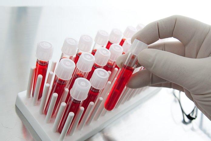 Анализ крови на аскариды