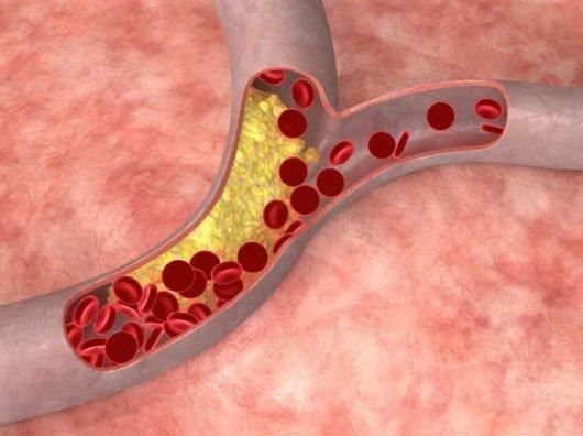 Анализ высокой плотности холестерина в крови — норма холестерина
