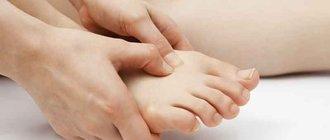 Псориаз на ногах: лечение народными средствами