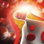 Повышенный холестерин у мужчин: причины, лечение