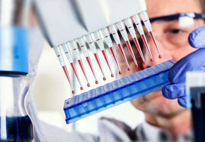 Анализ крови на токсоплазмоз