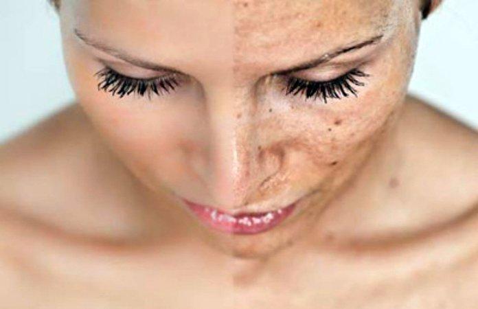 Отбеливание лица салициловой кислотой