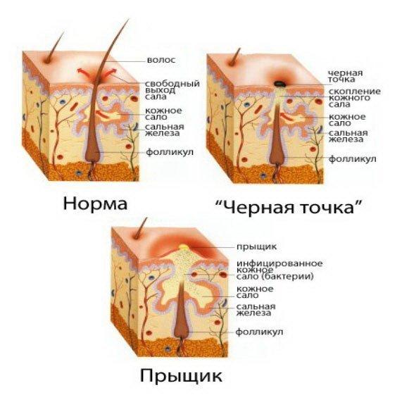 паразиты в носу лечение