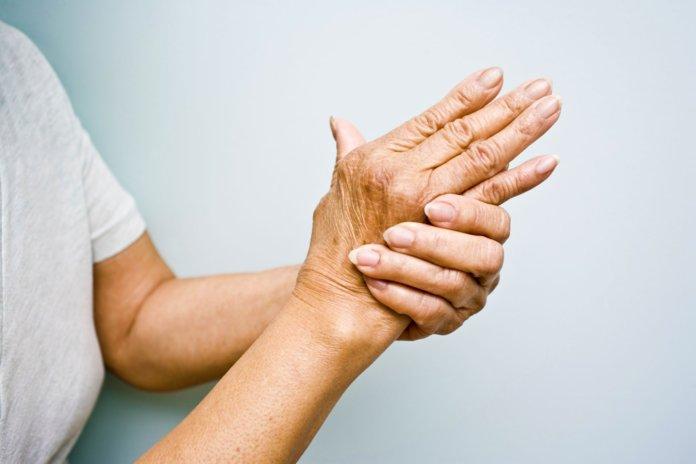 Ревматоидный артрит: определение