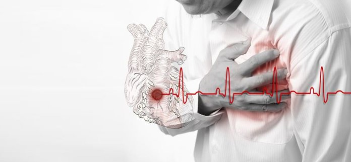 Инфаркт миокарда при повышенном давлении